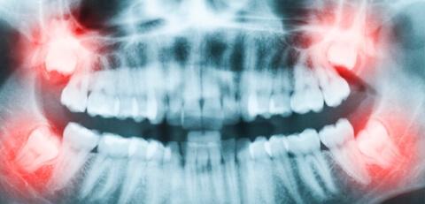 cirurgia-odontologica-02
