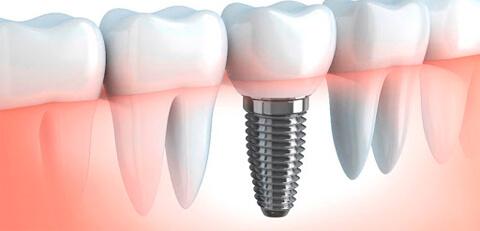 implantes-odontologicos-01